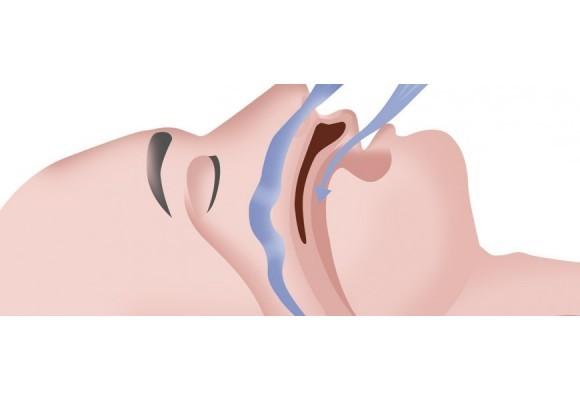 Le syndrome d'apnées-hypopnées du sommeil (SAHS)